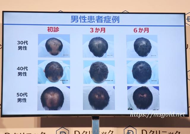 薄毛治療の症例写真